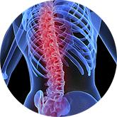 Как не пропустить остеопороз