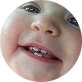 У ребенка режутся молочные зубки!