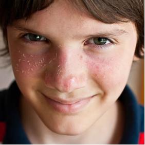 аллергия на солнце можно ли загорать