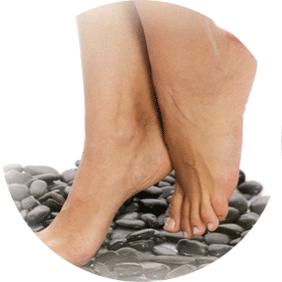 Как лечат варикоз на ногах