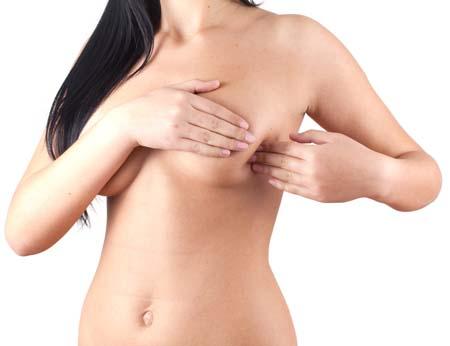 Лазерное удаление растяжек на животе, груди, бедрах