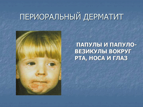 периоральный дерматит у детей
