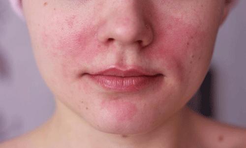 периоральный дерматит у подростков