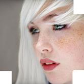 Пигментация на коже: как с ней бороться