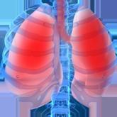Очаговоя пневмония