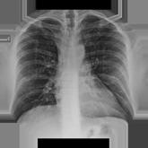 Тромбэмболия легочных артерий