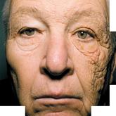 Как защитить кожу от солнца в летний период или всё о фотостарении